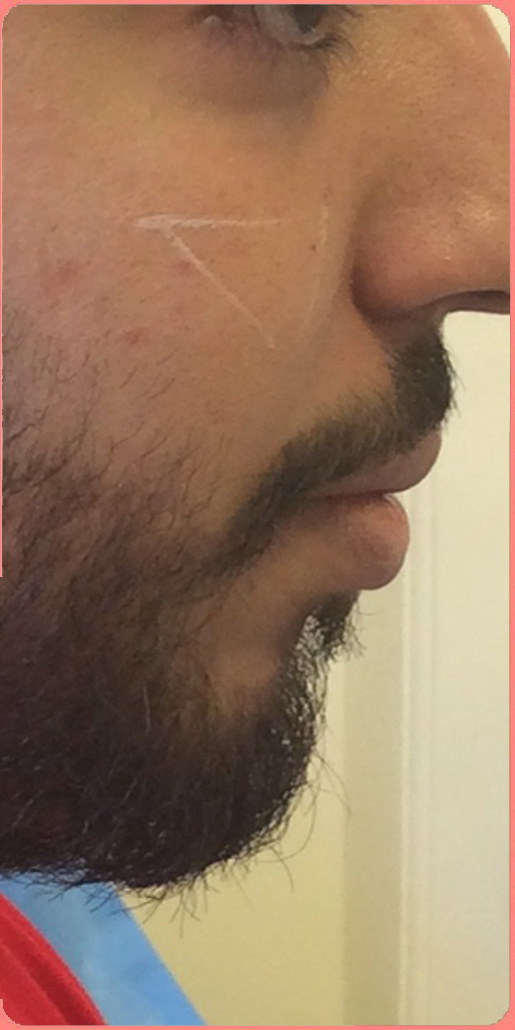 Before-تصویر3